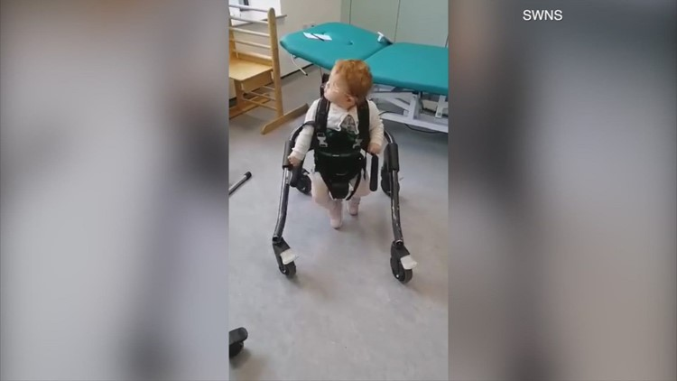 Defying the Odds! Parents Overjoyed When Toddler Takes First Steps After Being Told She Would Never Be Able to Walk!