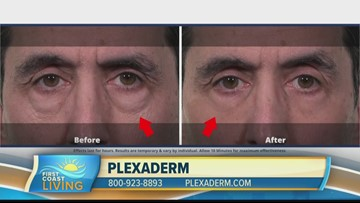 Get rid of those key signs of aging with Plexaderm (FCL January 20, 2020)
