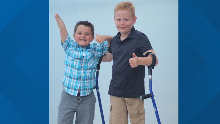 Camp No Limits: Free virtual camp this weekend for children with limb loss, their families