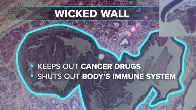 The Wicked Wall makes pancreas cancer one of the most lethal of all cancers.