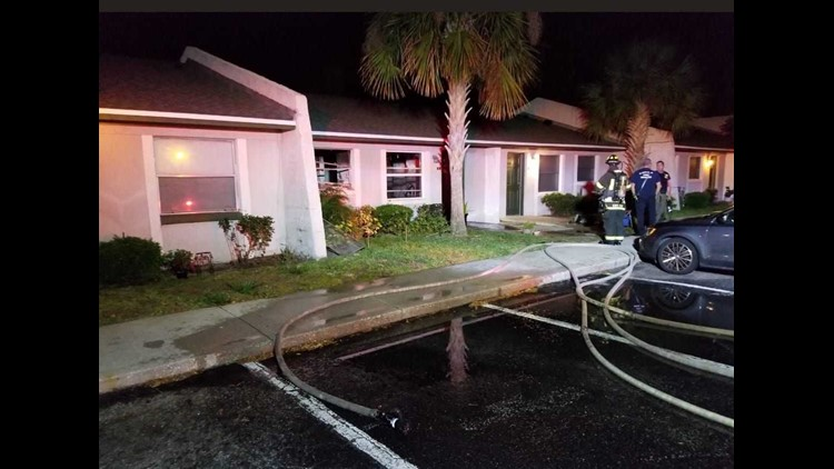 One person seriously injured in fire at st augustine apartment a st augustine resident is in serious condition at orange park medical center tuesday night altavistaventures Image collections