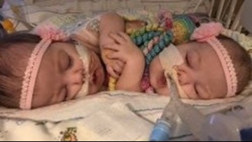 Conjoined twins separated at UF Health reunited in time for the holidays