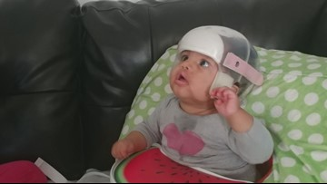 Baby's brain surgeries give family hope for promising future