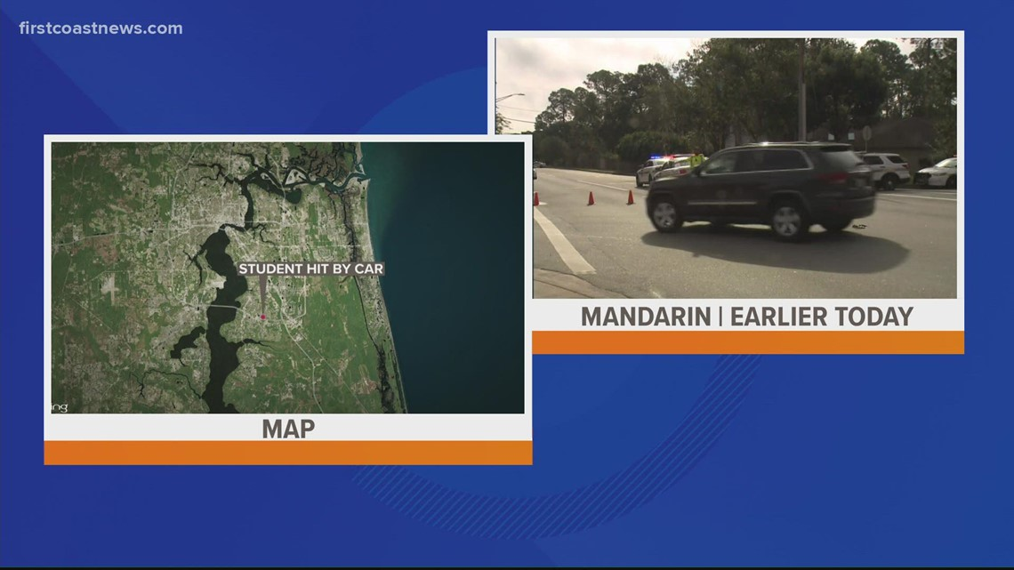 Child in serious condition after being hit by vehicle in Mandarin area