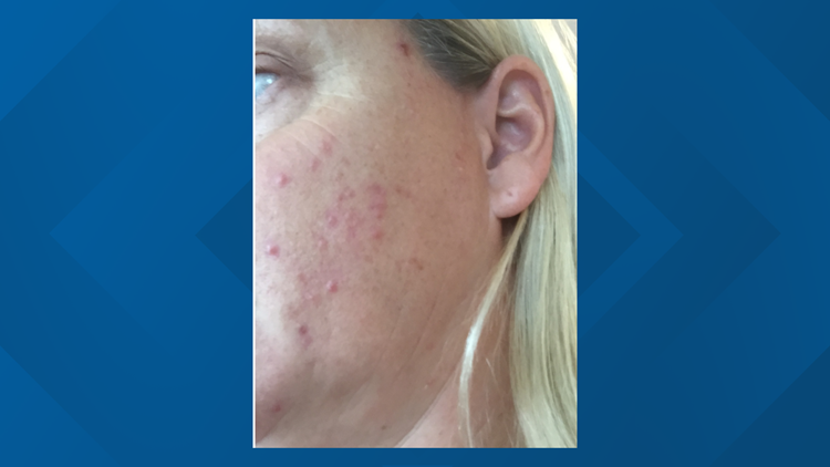 Acne from a bad experience with HRT