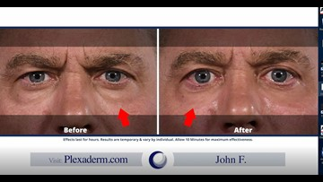 Get Younger Healthier Looking Skin without Surgery (FCL Apr. 18)