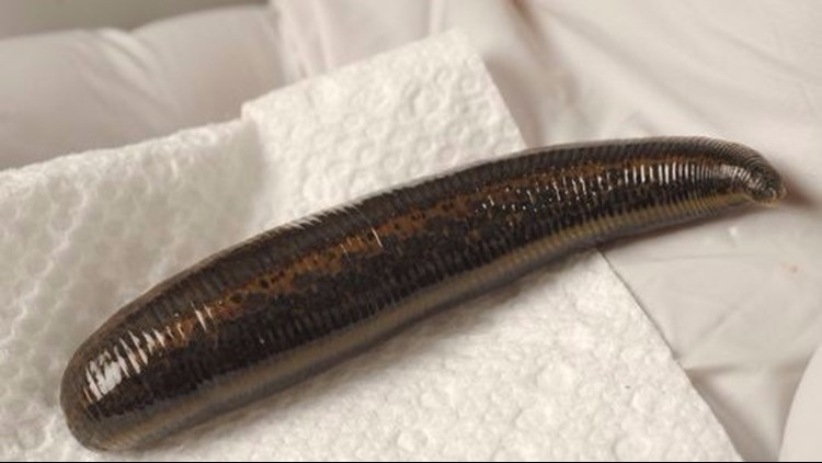 Leeches are prescribed for all sorts of health problems. Some scientists are open experimenting. Even if leeches don't do much good, they can't really do much harm.   (Photo: Viorel Florescu/NorthJersey.com)